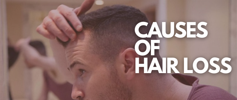 Causes of HairLoss